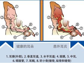 宠物耳道疾病的初期症状和外耳炎