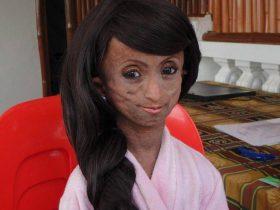 """亚洲""""最老女孩""""去世 年仅19岁身体却已经150岁"""